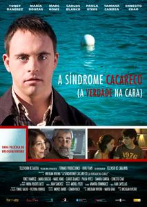 Emisión en la TVG de la Tv.Movie: A SÍNDROME CACARECO (A verdade na cara)